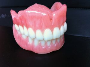Prothèse dentaire complète