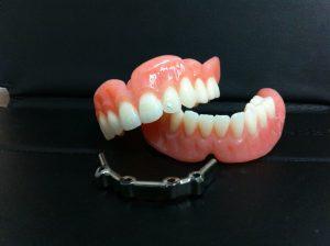 Prothèse dentaire sur implant