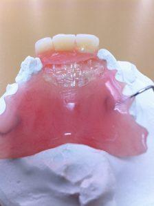 Réparation de prothèse dentaire avec fiber force
