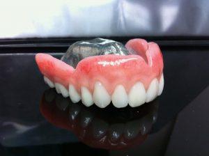 Prothèse dentaire avec palais transparent